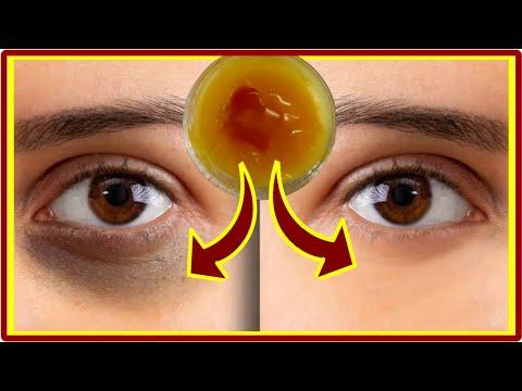 A szalagférgek tünetei az emberekben