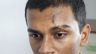 How to REMOVE FOREHEAD SCARS | Face Scar Removal | Plastic Surgery By Dr. Sunil Richardson