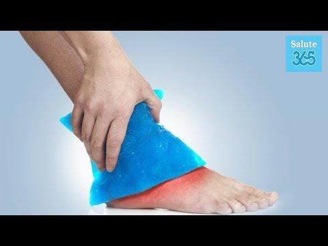 Nei tacchini articolazioni gonfie nelle gambe per trattare