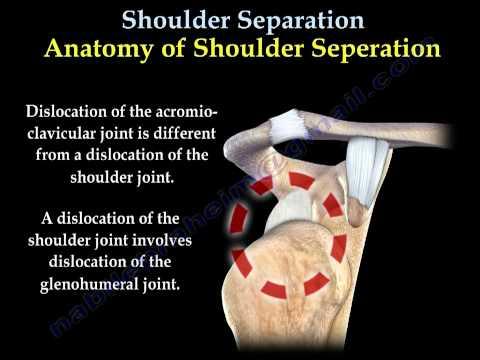 Akut térd artritisz osztályozás