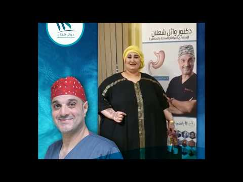 زهرة عبد الحميد من ليبيا بتتكلم عن تجربتها مع د/ وائل شعلان بعد عملية تكميم المعدة