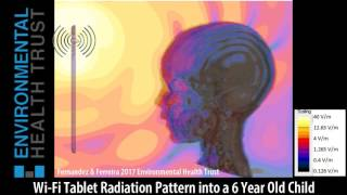 Wi-Fi Tablet Radiation Into a 6 Year old Child