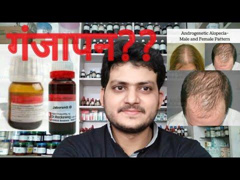 Video Androgenic alopecia!Homeopathic medicine for androgenic alopecia?? explain!