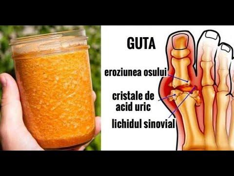 Exacerbarea artrozei tratamentului articulației genunchiului