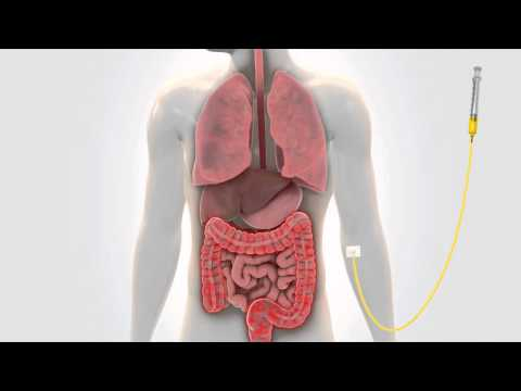 Video C. difficile & SYN-004 - Medical Animation by Watermark