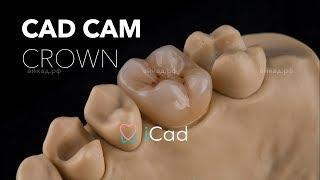 3D modelling a tooth crown cad cam / Моделировка 3D реставрации коронки зуба