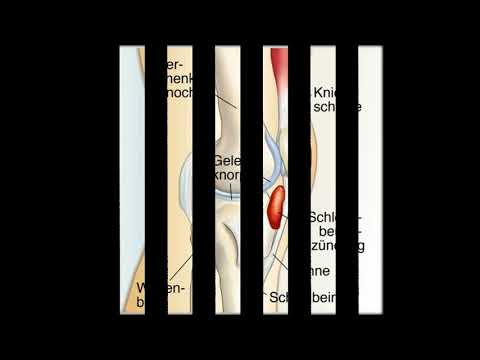 Schmerzen hinter der rechten hinteren Seite in der Lendengegend