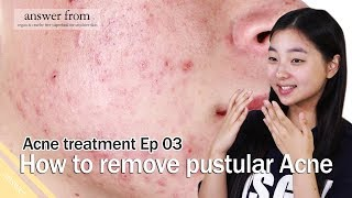 Acne treatment Ep 03 : How to remove Pustules Acne