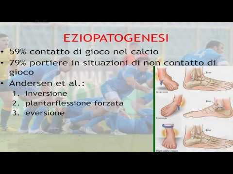 Terapia magnetica in osteoartrite delle articolazioni dellanca