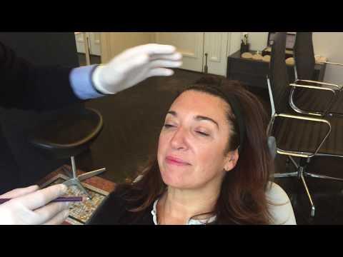 Les procédures cosmétiques des taches de pigment sur la personne