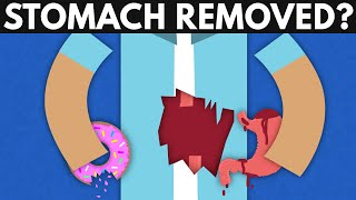 What Happens If Your Stomach Gets Removed?