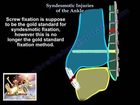 Calmează rapid durerea articulației genunchiului