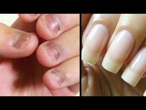 Als die Nägel bei ihrer Schichtung zu heilen