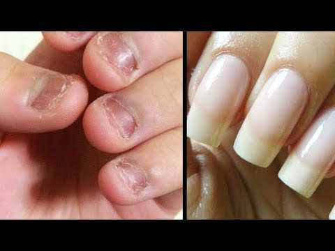 Das Programm des Doktors mjasnikowa über gribke der Nägel