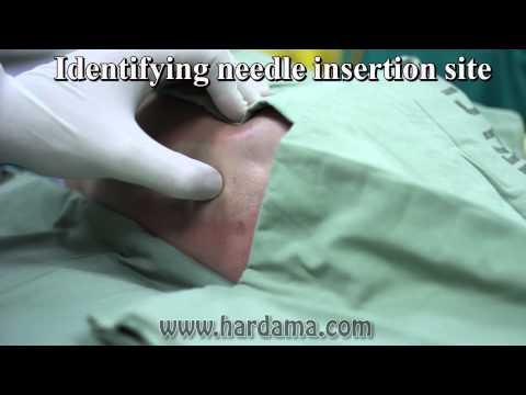 Skoliose der Brustwirbelsäule Diagnostik