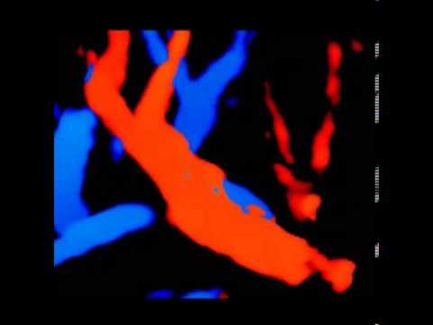 Atherosclerosis e trombosi pristenochny di unaorta