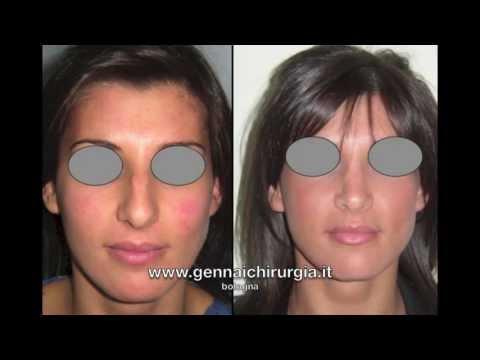 Correzione di un occhio cosmetology