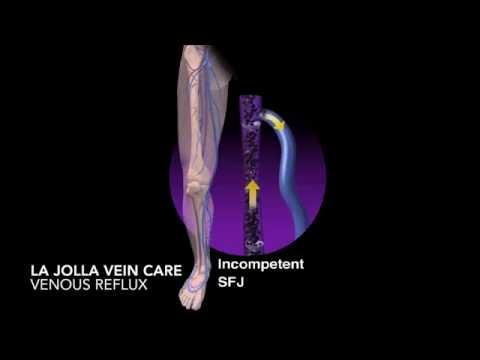 การผ่าตัดเส้นเลือดขอดขนาดเล็กของกระดูกเชิงกราน