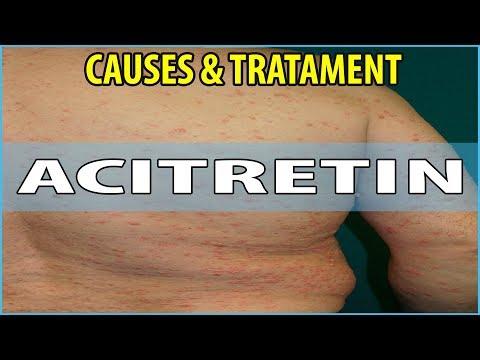 Eczema allatto di violazione di un ciclo mestruale