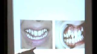 Dr. James Beck Fluoride Discussion