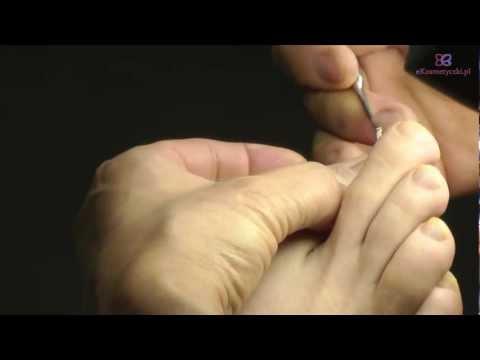 Przyczyny kości stopy