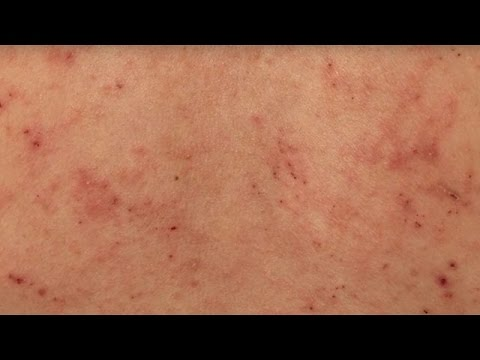 Die Salbe vom Ekzem und dem Jucken 25гр eczema and pruritus cream die Rezensionen