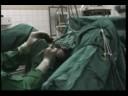 Masáž prostaty Dmitrov