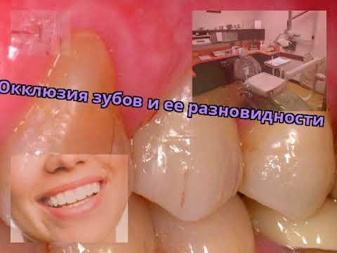 Окклюзия зубов и ее разновидности