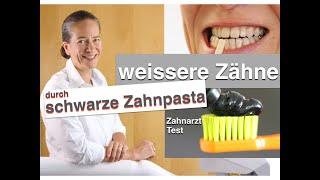 Zahnärztin testet SCHWARZE Zahnpasta für WEISSERE ZÄHNE: LIVETEST: Top oder Flop
