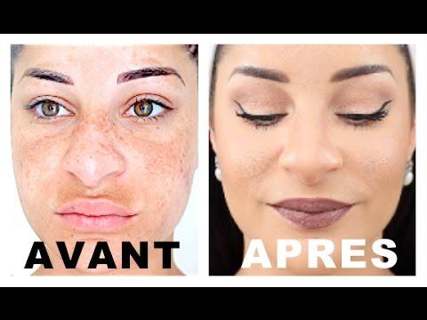 La sortie de la peau à la pigmentation