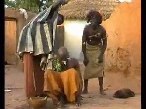 Lékař v Mozambiku léčí migrénu