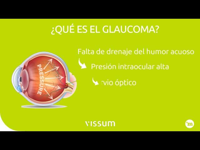 Glaucoma. Causas y tratamiento - Vissum Madrid