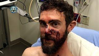 Colorado Man, Travis Kauffman, Survives Mountain Lion Attack