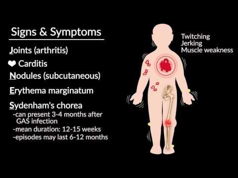 Tratamentul cu Todicamp al artrozei