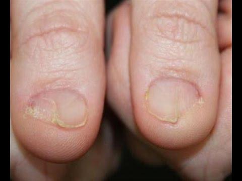 Jak leczyć łuszczycę na dłoniach