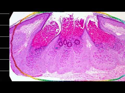 Condyloma acuminatum of the anogenital region