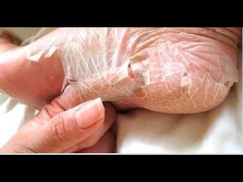 Tratar um fungo do peróxido de pernas