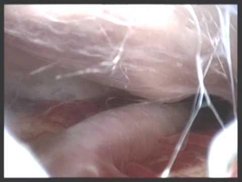 La malattia provocata da helminths