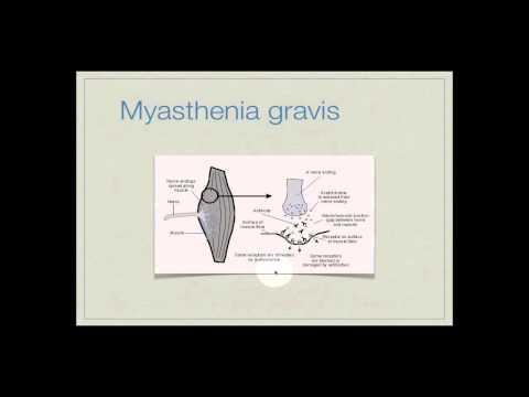 Biologisch aktive Punkte in der Behandlung von Osteoarthritis
