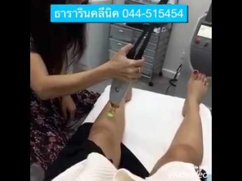 กระดูกเท้าใกล้ผ่าตัดหัวแม่ตีน