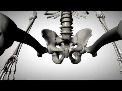 Scoliosi e osteocondrosi crescite