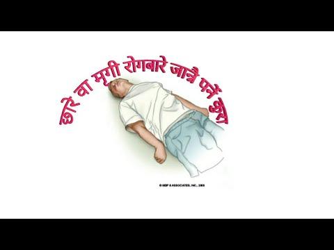 मृगी/ छारे  रोगको जानकारी Epilepsy in Nepali Dr Bhupendra Shah