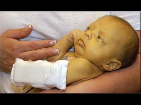 Video Treating Newborn Jaundice - Onlymyhealth.com