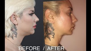 !!MUST WATCH!! What They Don't Tell You About Lipo!