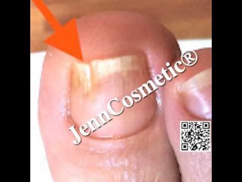 Die Behandlung der Mykose der Beine der Nägel