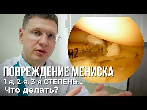 Tratament pentru gonartroza genunchiului 2 grade