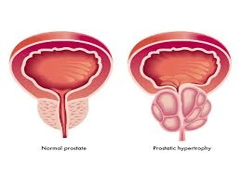 Prostate surgery in men