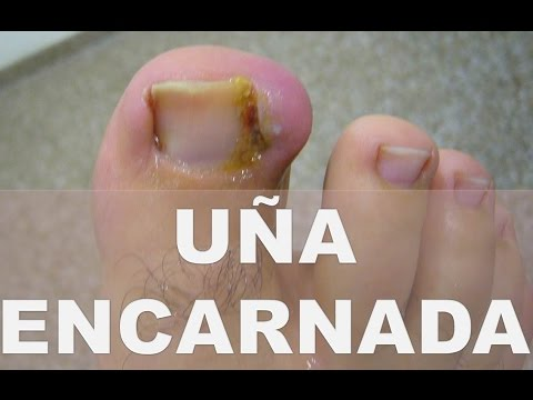 La grieta en los pies y el hongo