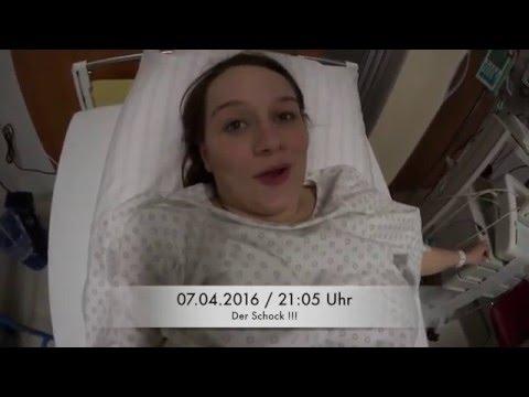 Warikosnoje die Erweiterungen der Beine ohne Operation