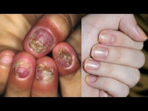 Tratamento de fungo de pele medicina eficaz